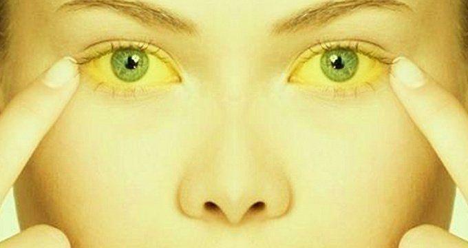 [:bg]Аюрведа лечение при жълтеница[:en]Ayurveda treatment for jaundice[:ru]Аюрведа лечение желтухи[:] | Ayurveda Bansko