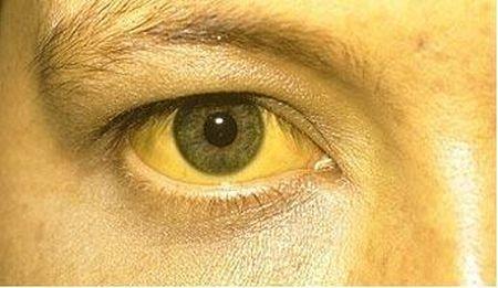[:bg]Аюрведа лечение на хепатит А и Б[:en]Ayurveda hepatitis A and B treatment[:ru]Аюрведа, лечение гепатита А и В[:]