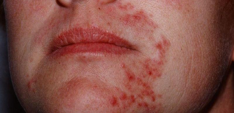 [:bg]Кожни проблеми за лечение с Аюрведа[:en]Skin problems for Ayurveda treatment[:ru]Проблемы с кожей для лечения аюрведы[:]