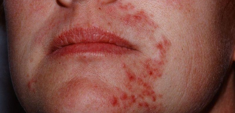 Skin problems for Ayurveda treatment