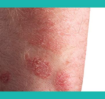 Does Ayurveda heal psoriasis?