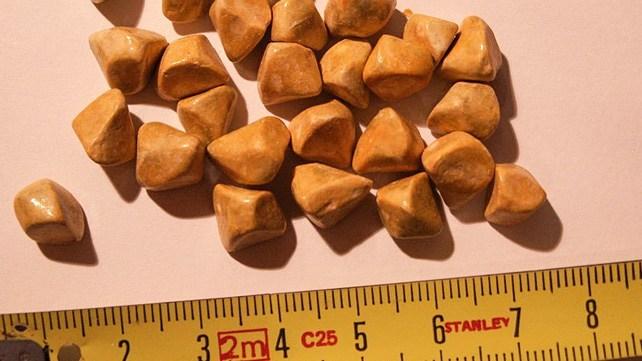 """Stones in the gallbladder"