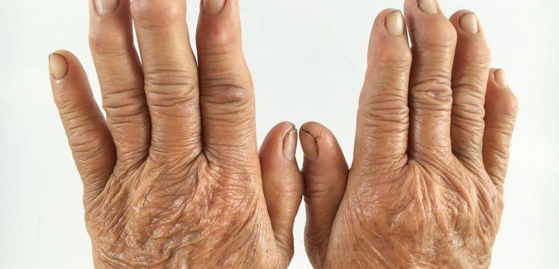 Treatment of rheumatism and rheumatoid arthritis