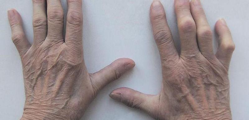 Ayurveda treatment of rheumatoid arthritis