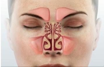 Treatment of sinusitis with Ayurveda